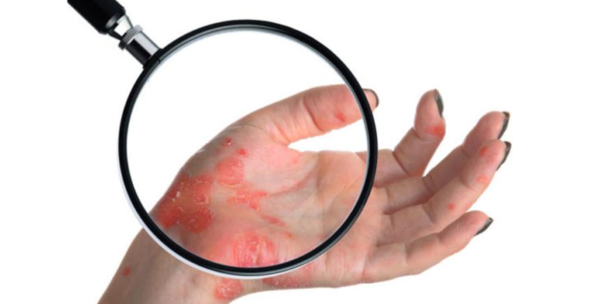 Olej z konopi w terapii łuszczycy